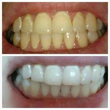 teeth-before-after